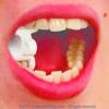 2009-orofacial-myology-2-way-mouth-props
