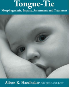 TONGUE-TIE MORPHOGENESIS-IMPACT-ASSESSMENT-AND-TREATMENT