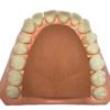 orofacial-myology-myo-mouth-model-3
